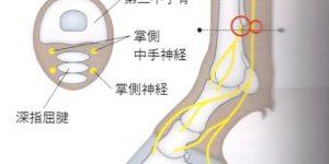 診断麻酔〜Low-4-point ブロック〜