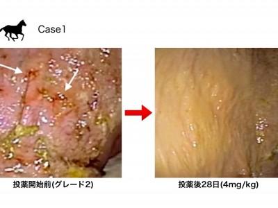胃潰瘍について