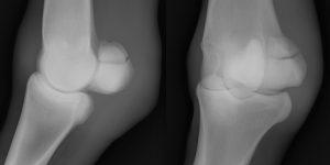 種子骨の骨折(尖端部の骨折)