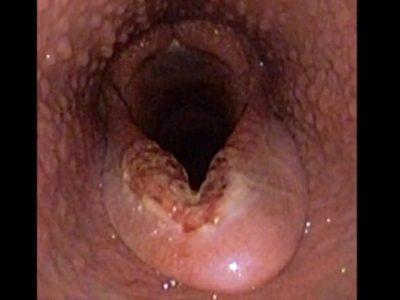 喉頭蓋エントラップメント(EE)について
