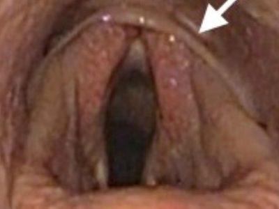 第4鰓弓欠損